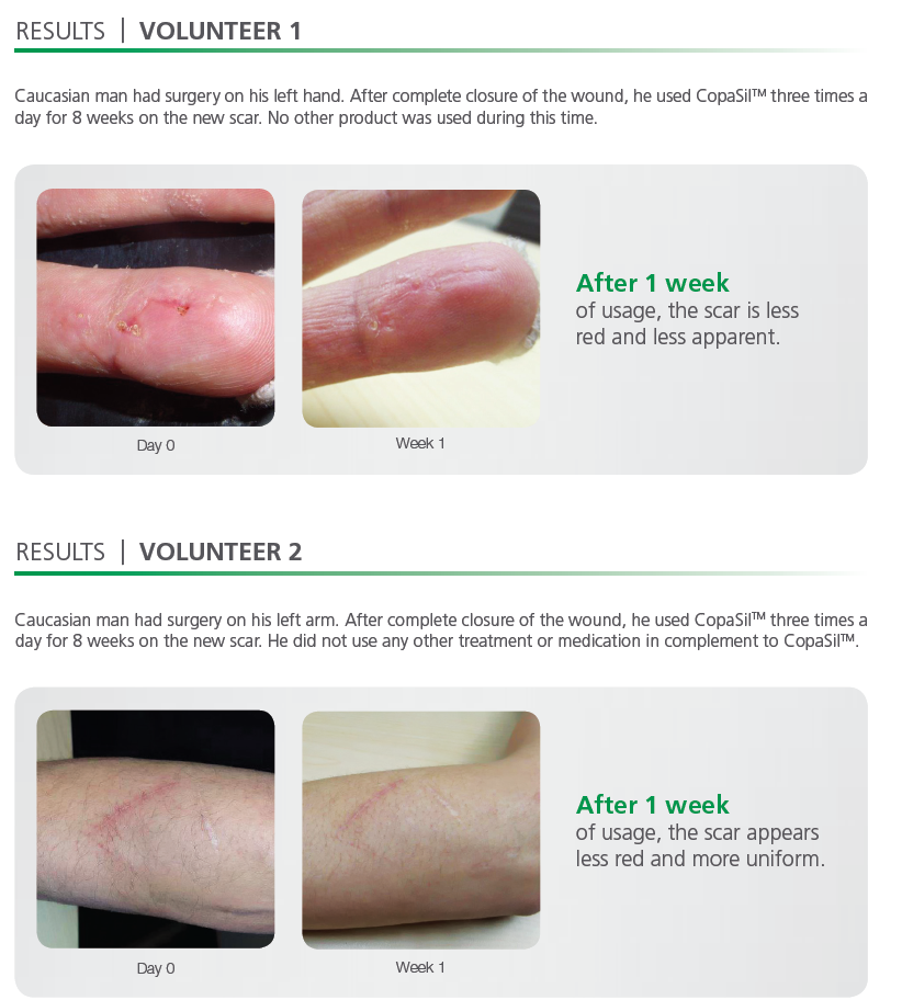 CopaSil Scar Treatment Case Studies