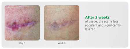 CopaSil Case Study - Scar after 3 weeks
